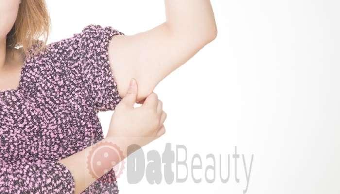 sagging skin on arms